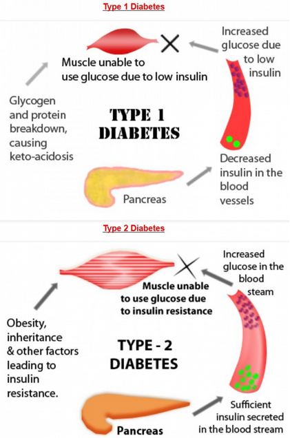 a medial description of the diabetes disease Definition of diabetes - a disease in which the body's ability to produce or respond to the hormone insulin is impaired, resulting in abnormal metabolism o.